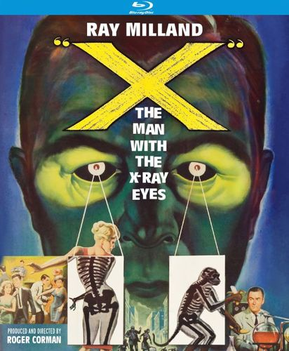 X: The Man with X-Ray Eyes [Blu-ray] [1963] 27412201
