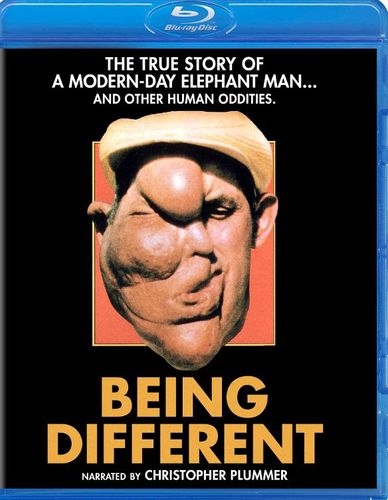 Being Different [Blu-ray] [1981] 32924618
